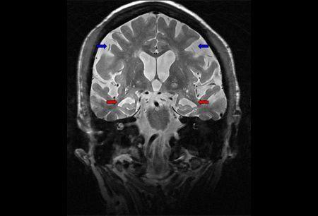 Hippocampal_atrophy