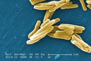 MycoTuberculosis1