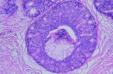 Breast Intraductal Carcinoma